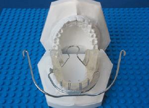 Teuscher-Aktivator-Headgear-Kombination