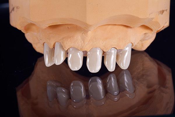 Kombinierter zahnersatz u dental labor wentzsche