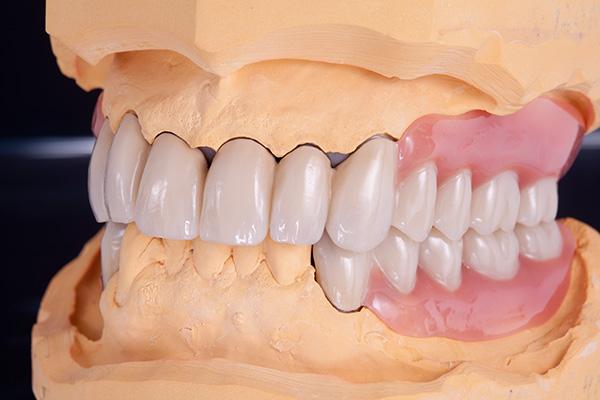 Teleskopkronen zahnersatz von flemming dental