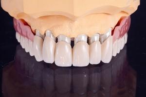 Zahnersatz und zahnkronen von flemming dental
