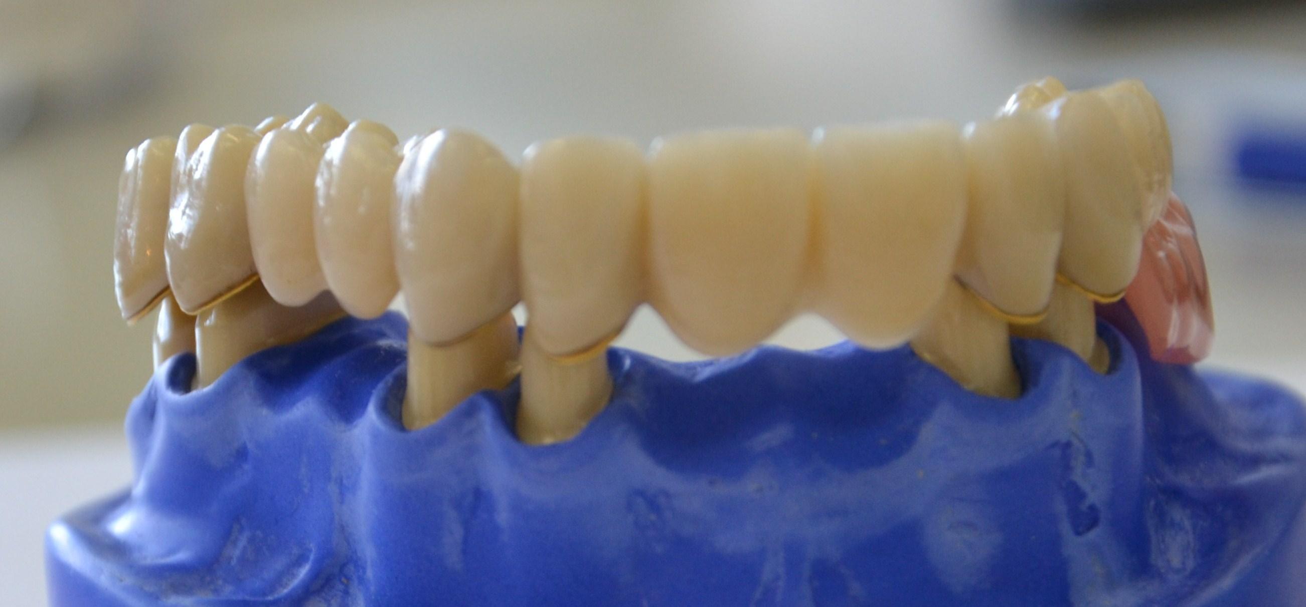 Gaumenfreier Zahnersatz - Flemming Dental